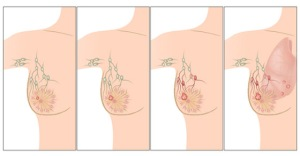 Stages-of-Breast-Cancer